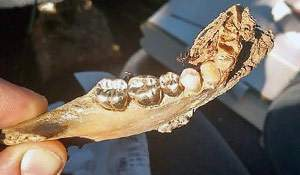 Found: a jawbone with gold teeth. What is to be done?